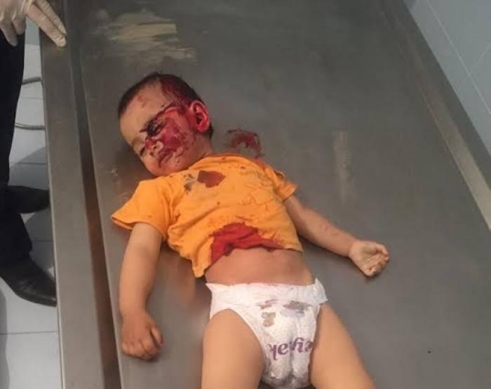 Beweis für armenische Gräueltat - Fotos des getöteten 2-jährigen Mädchens (+18 Fotos)