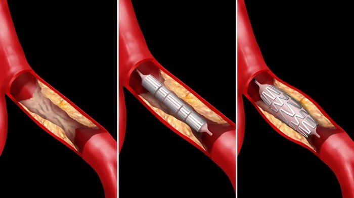 Do heart stents work? What you need to know