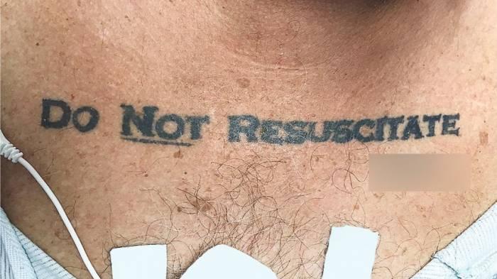 """Patient mit """"Nicht Wiederbeleben""""-Tattoo verunsichert Ärzte"""