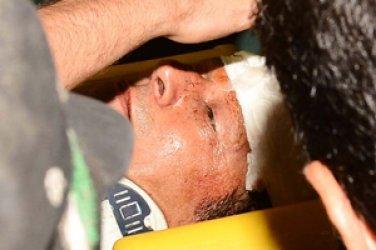 Prezidentliyə namizəd 4 metr hündürlükdən yıxılıb