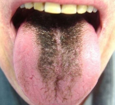 Piercing langue strié noir