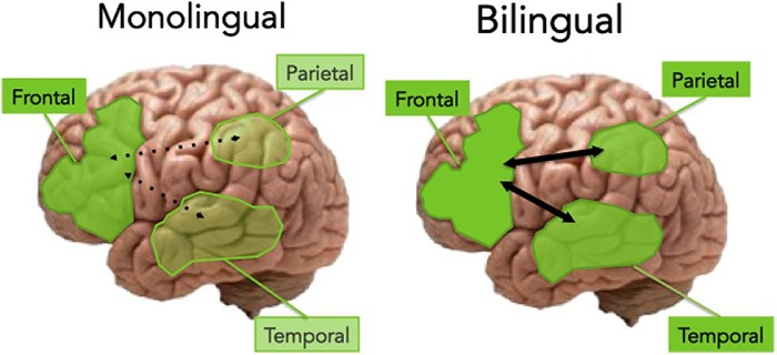 Speaking More Than One Language Eases Stroke Recovery