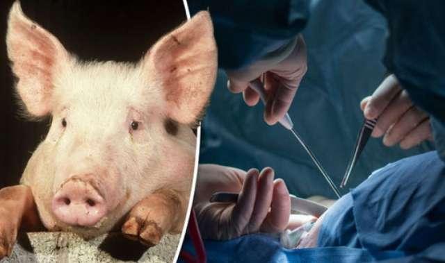 Pig-to-human organ transplant 'two years away'