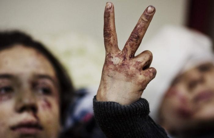 Bir ildə Suriyada 652 uşaq ölüb