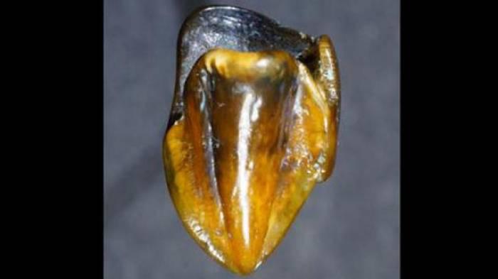 Deux dents vieilles de 9,7 millions d'années découvertes en Allemagne